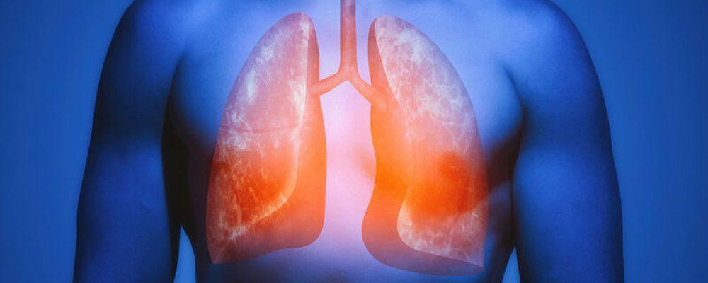 Οι πέντε τροφές που αποτοξινώνουν και θεραπεύουν τους πνεύμονες