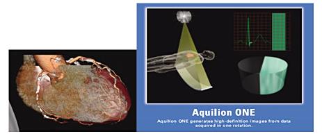 one-aquilion1
